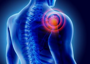 Shoulder injuries caused by car accidents, grand junction accident attorney