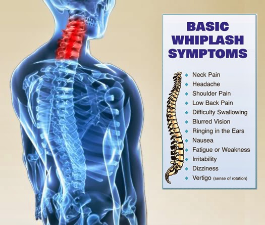 What are the symptoms of Whiplash?